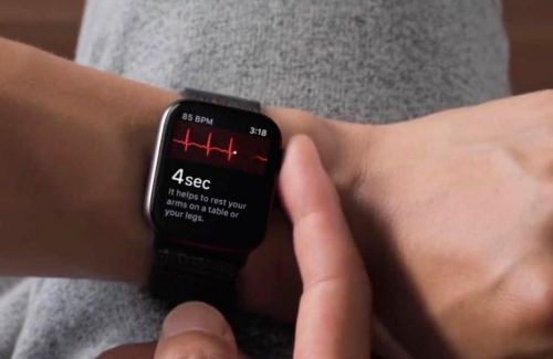 Comment faire un ECG avec l'Apple Watch