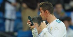Real Madrid:  Cristiano Ronaldo se sert d'un iPhone pour inspecter sa blessure